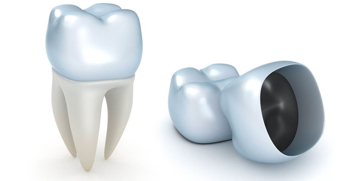 CAD/CAM Dental Restorations, Boston MA