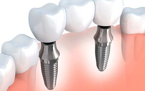 Boston Implant Dentistry in Marblehead